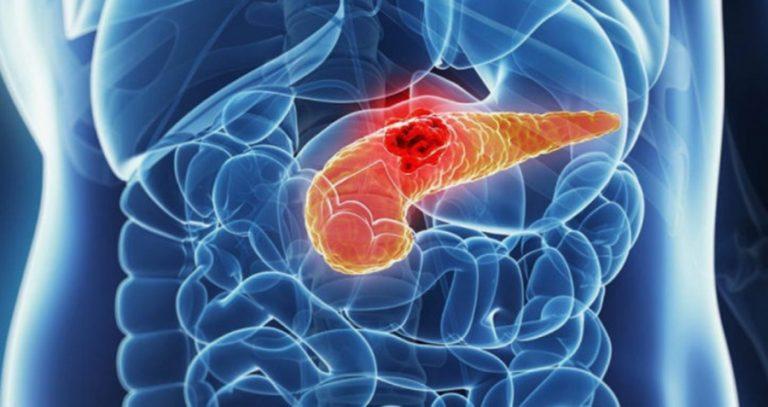 hasnyálmirigyrákot okoz parazita kezelõ tabletták