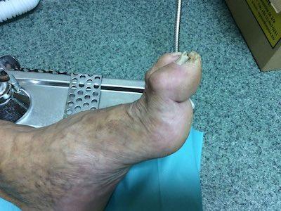 égő a lábujjak kezelése között enterobiosis szűrés gyermekek számára, mi az