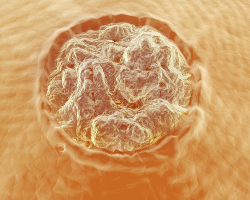 emberi papillomavírus emberben