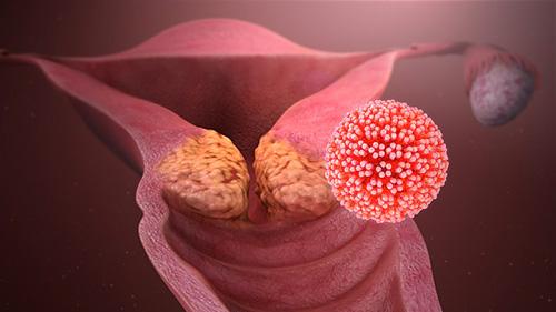 Giardia em humanos, Giardia humanos sintomas