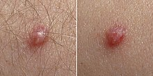 HPV papilloma