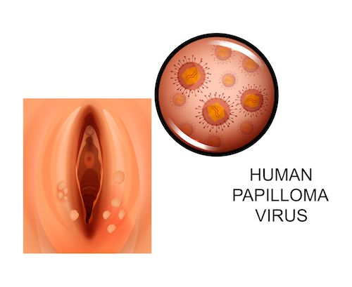 hpv vírus muzi liecba