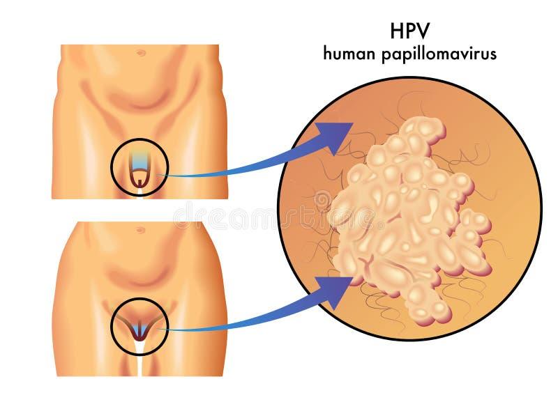 hpv vírus zeny szemölcsök a végbélnyíláson lévő nőknél