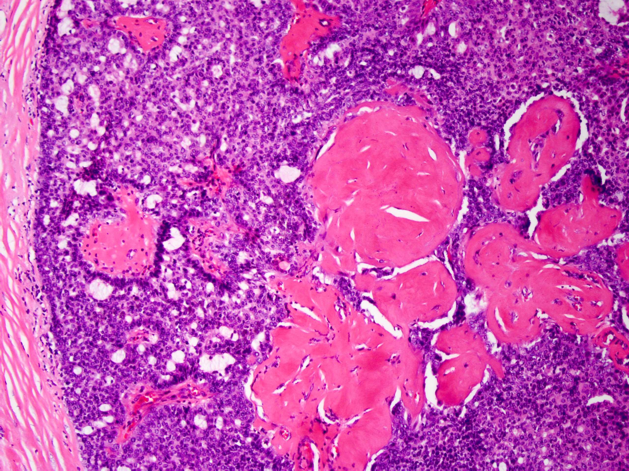 intraductalis papilloma ductalis hyperplasiaval kerek férgek egy tinédzserben