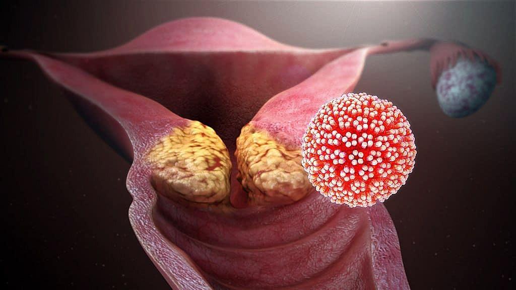 lehetséges az emberi papilloma gyógyulása