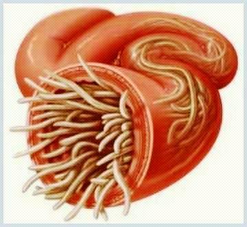 a méregtelenítés kiegészíti a mellékhatásokat az emberi féregfertőzés megelőzése