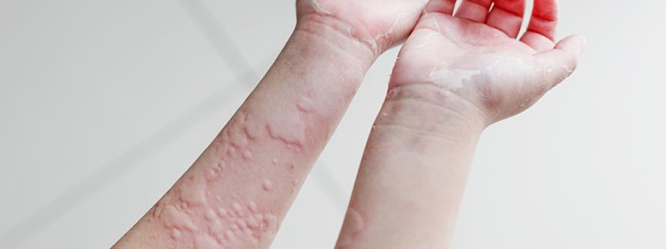 A bőr okai és kezelése, ha a lábujjak között a bőr megszakad - Termékek