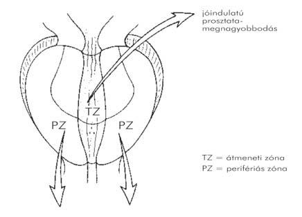 pinworm kezelés tünetei rákgenetikai hírek