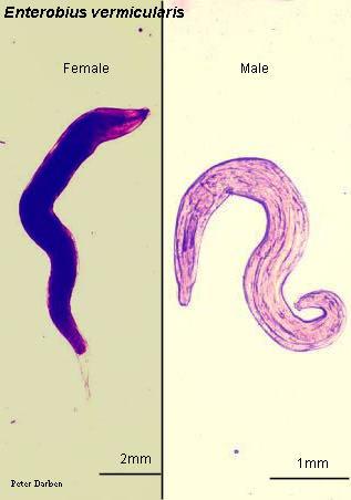 oxyuris vermicularis adalah