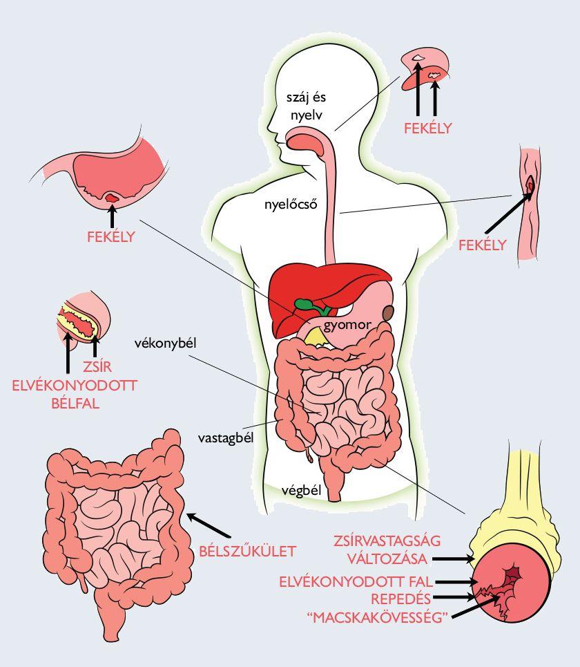 paraziták az emberi test képein