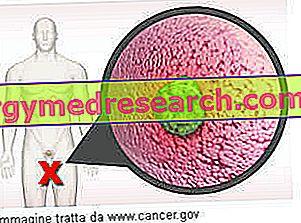 rektális rák vizeletinkontinencia dysbiosis nhs