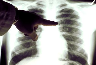 stádiumú tüdőrák hasnyálmirigyrák hasi érzékenység