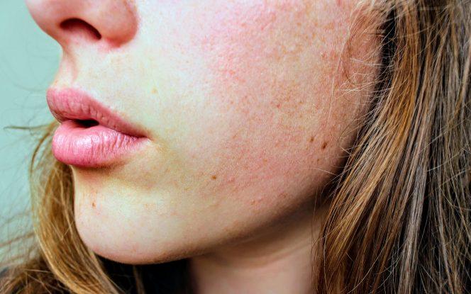 stressz dermatitis