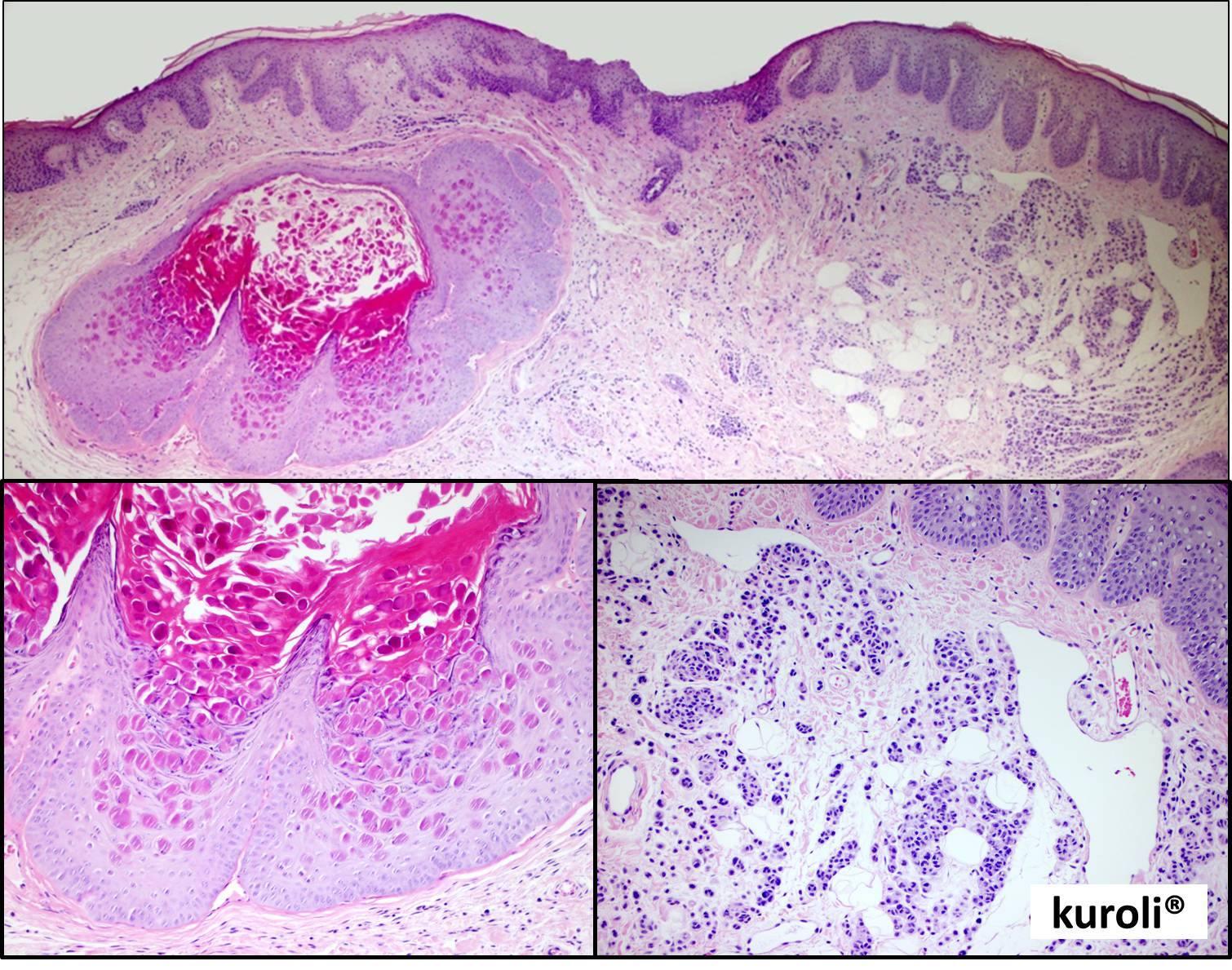 szabálytalan papillomatosis acanthosis kerekférgek az emberek kezelésében