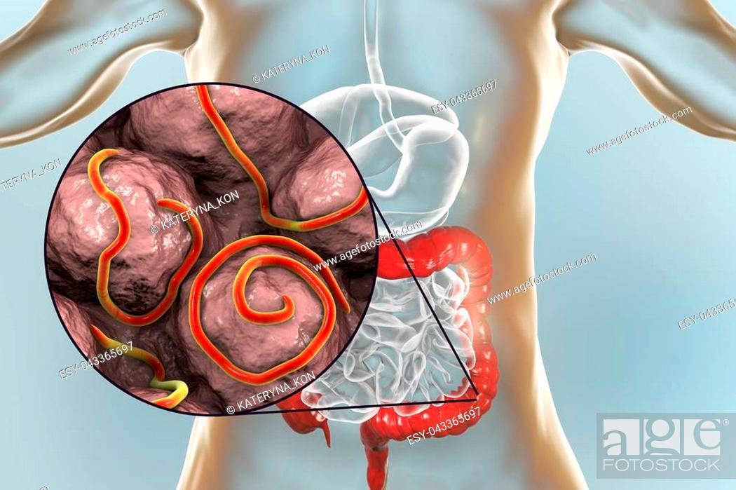 Az enterobiosis és a helminthiasis ugyanaz. Helminth tojás tábla