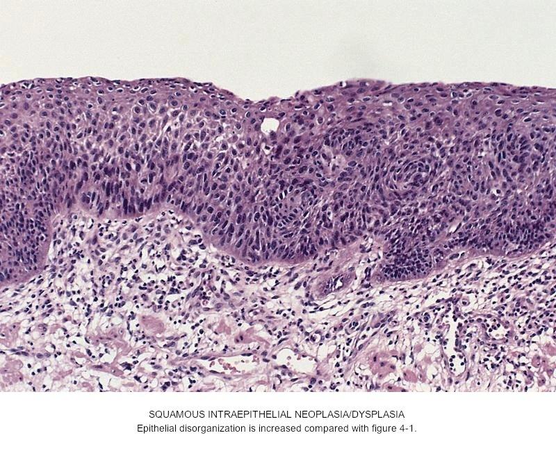 dysbiosis és betegség papilloma vírus ambuláns beavatkozása