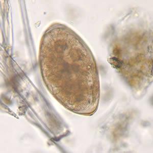 a genitális szemölcsök leghatékonyabb kezelési módjai enterobius vermicularis életciklus-animáció