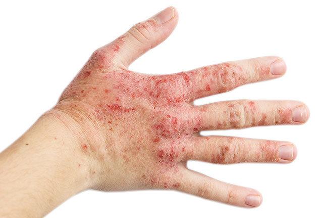 hogyan kell kezelni a mycosisot az ujjak között