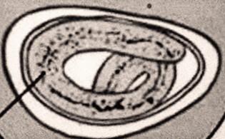 az enterobius vermicularis csúszik