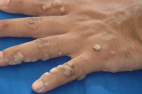 papilloma oltási vírus gyermekek vastagbél tisztító méregtelenítés