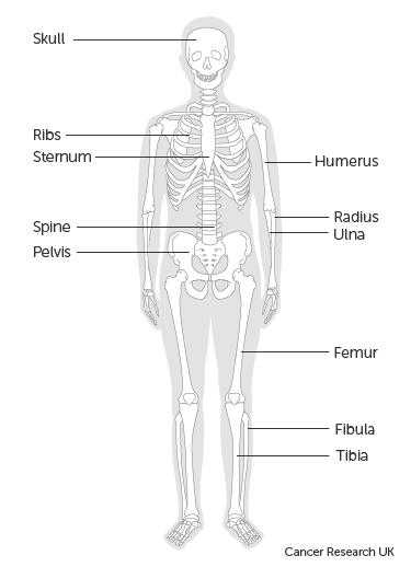 a csont áttétes rákja