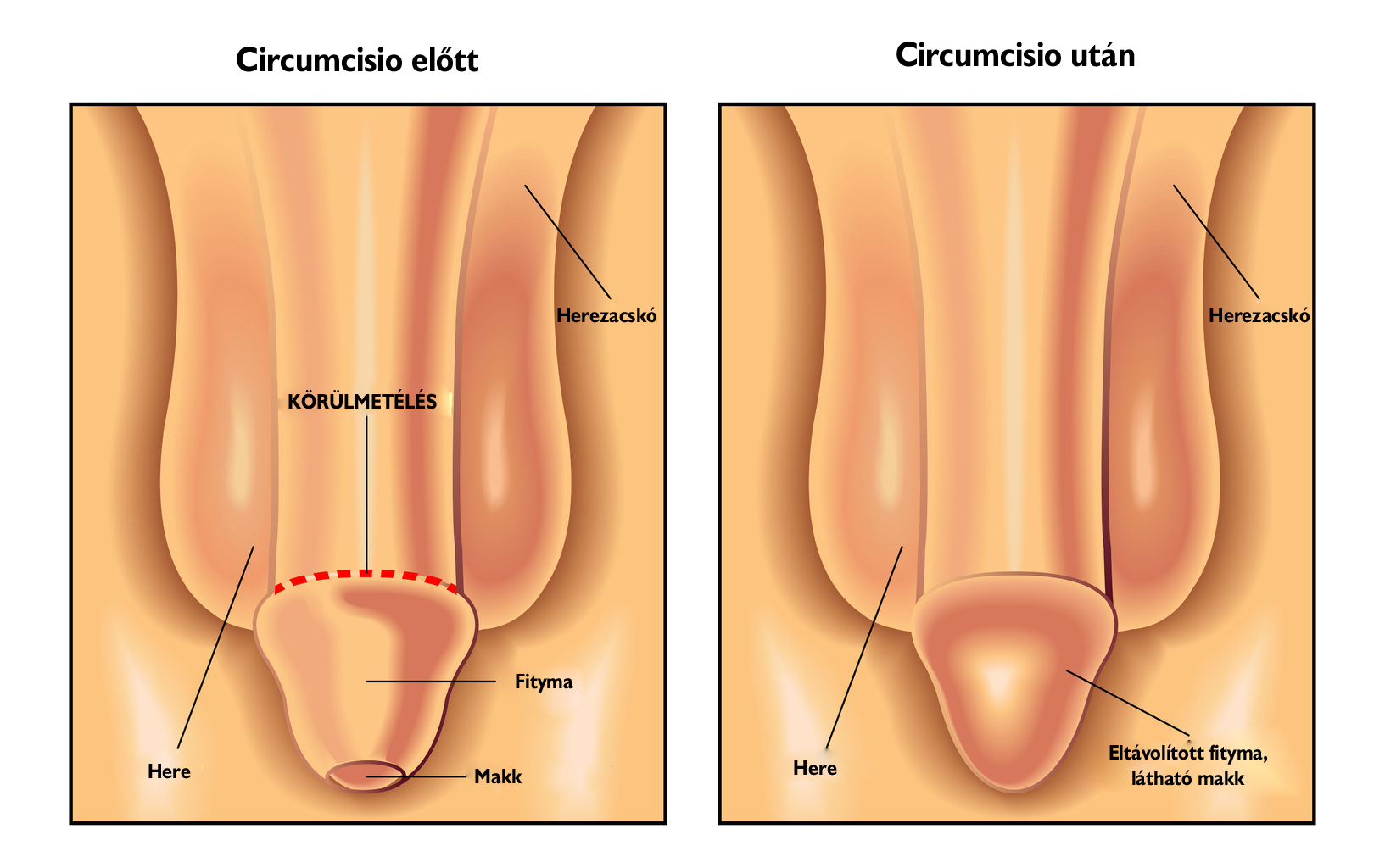 nyaki condyloma kezelése sp az enterobiosis miatt