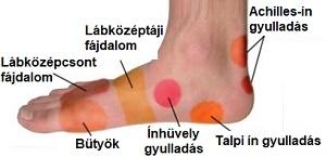a lábujjak közötti fájdalom férgek kezelése összenyomott gyermekeknél