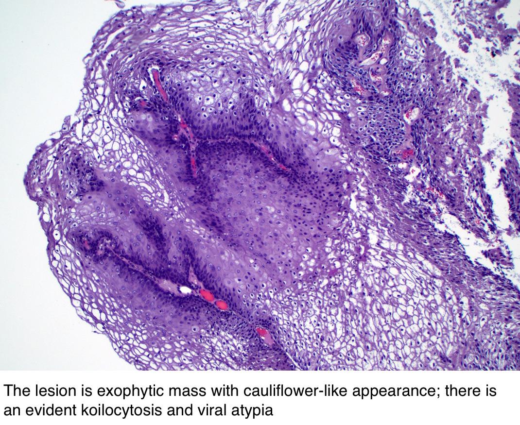 szájüregi rák cikkek