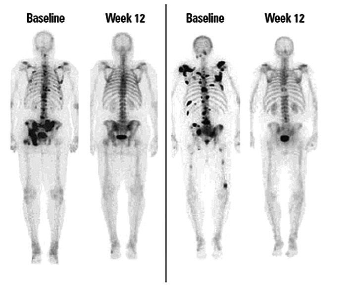 a csont áttétes rákja tulajdonságok platyhelminthes yahoo