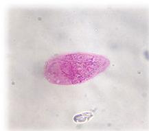 az egészséges illatú paraziták megtisztítása dalféreg parazita