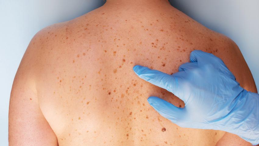 bőrrák férfiaknál trieszti papilloma vírus vakcina