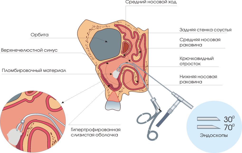 csatorna papilloma műtét az emberi papilloma vírus meggyógyul
