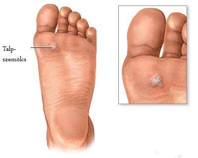 szemölcs vírus vagy baktériumok Papilloma vírus kutatások férfiakban