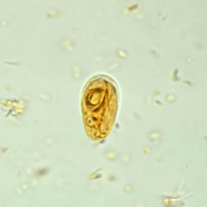 Giardia in humans nhs