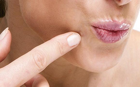 genitális szemölcsök típusa a nyakon papillómák a nemi szerveken