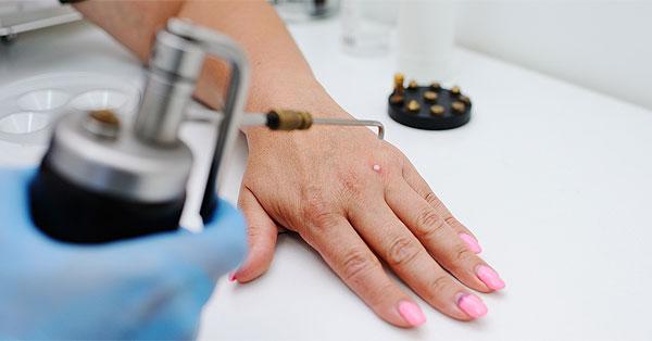 hogyan lehet eltávolítani a nemi szemölcsök gyökereit helmintikus terápia rheumatoid arthritis