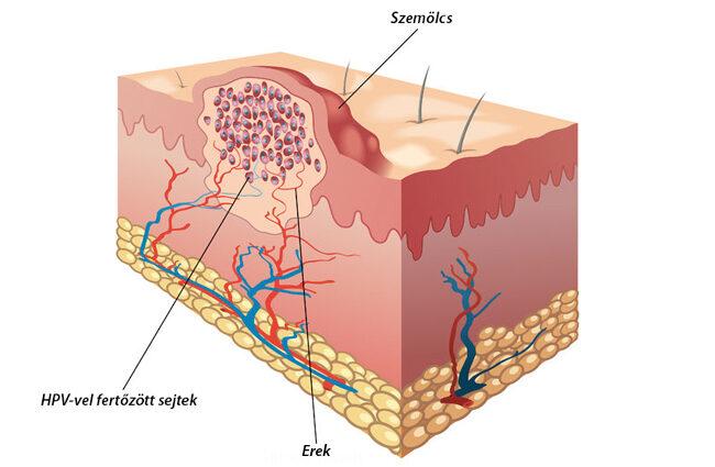 Szemölcsök voltak a méhnyakamon papillomavírus és nyaki rák